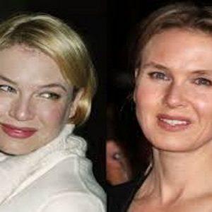 Renèe Zellweger, chirurgia estetica, Hollywood